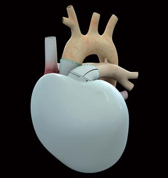 Медицинска сензация във Франция: имплантираха биопротеза на сърце